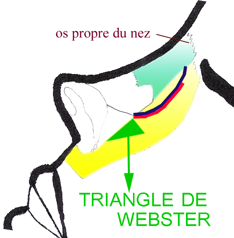 triangle-webster-chirurgie-esthetique-rhinoplastie